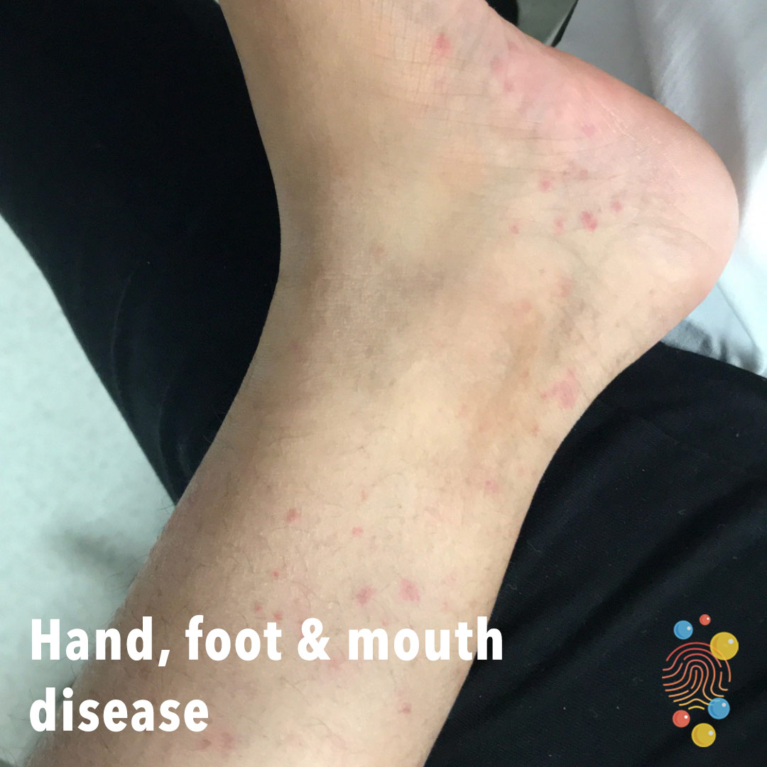 148b-hand-foot-and-mouth-disease.jpg